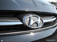 2017 Hyundai Accent SE HATCH